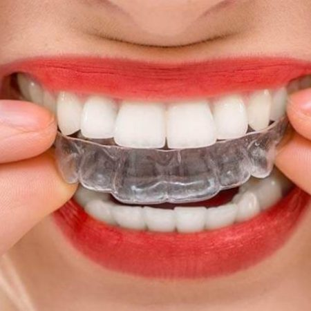 5 Reasons Why Clear Braces Are Right For You